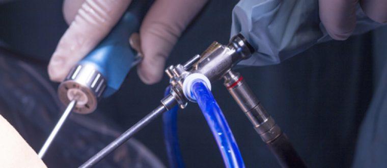 ארתרוסקופיה של מפרק הקרסול: מתי צריך ניתוח?
